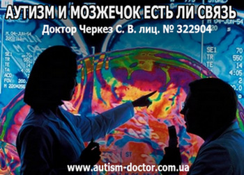 АУТИЗМ И МОЗЖЕЧОК ЕСТЬ ЛИ СВЯЗЬ. Доктор Черкез С. В. Viber: +3 8050-775-98-58